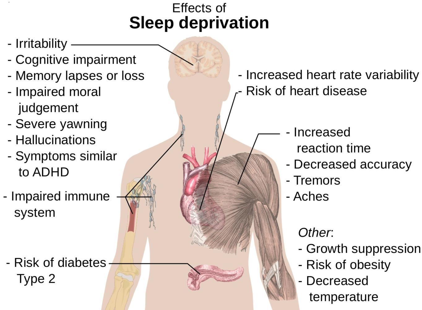 This diagram shows the several scary effects that prolonged sleep deprivation can have on individuals.