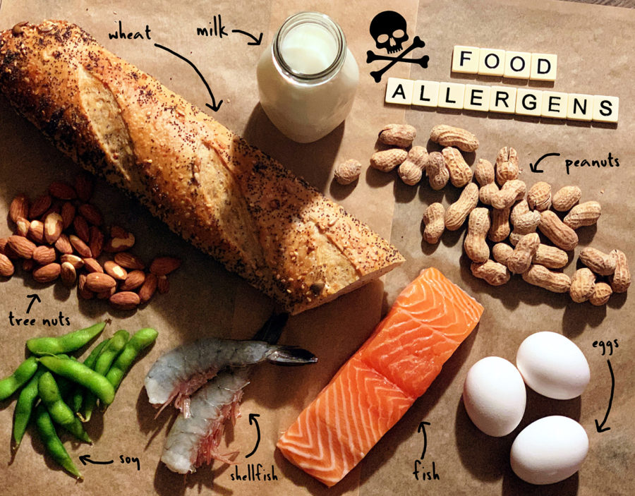 There are many different foods that people can have allergies to.